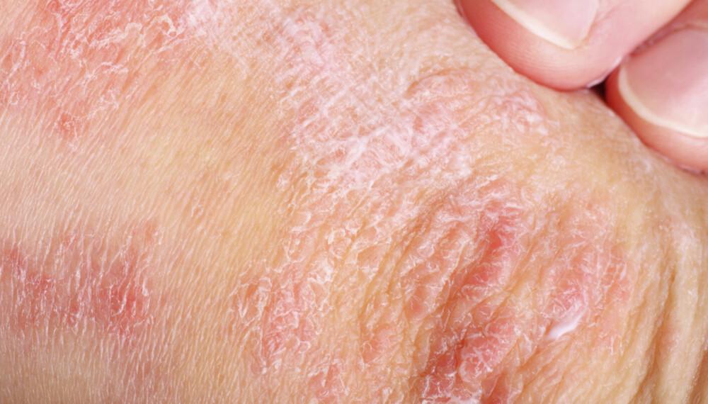 PSOROASIS: Tørr hud på albuene kan bety mer enn bare døde hudceller. Hudlidelser som psoriasis kan gi utslag på albuer.