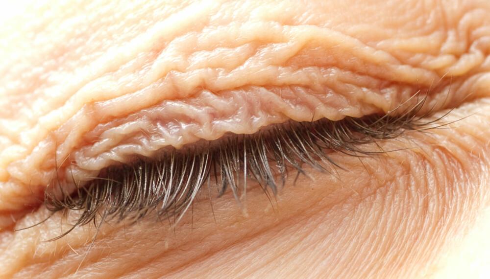 SØVN PÅVIRKER HUDHELSEN: Ny forskning konkluderer med at utilstrekkelig søvn reduserer hudens helse og akselererer aldring av huden.
