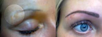 TATOVERING DEKKER OVER: En permanent makeup-tatovering kan dekke over et arr fra piercing i øyebrynet. Til venstre ser du øyebrynet før tatoveringen, og til høyre det ferdige resultatet.