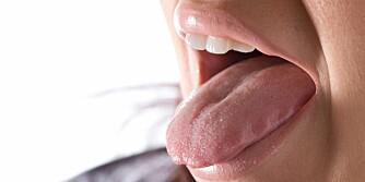 KAN SKYLDES MAT OG DRIKKE: At det blir slim i hals-og svelgsystemet kan skyldes den direkte kontakten med visse mattyper, mener noen eksperter.