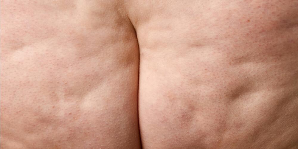 MANGE ÅRSAKER: En rekke faktorer kan sies å være årsaken til overvekt; arv, kosthold, fysisk aktivitet, psyke. Ifølge ernæringsfysiolog Anne Christine Browne vil overvekt for de fleste gjerne være resultatet av små endringer over tid.
