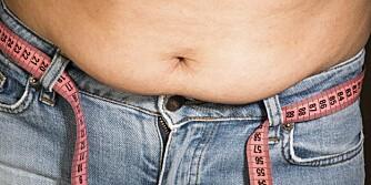 BARE ETT AV PROBLEMENE: Overvekt er kun én del av problemene som for mye sukker i hverdagen kan føre til.