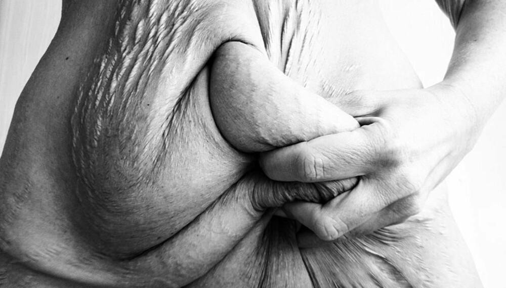 LØS HUD: Tine Dyrkorns mage etter slankeoperasjonen.