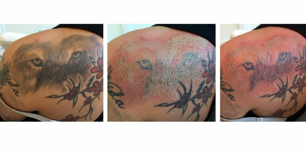 FJERNER TATOVERINGEN: Bilder som viser et område før, under og etter første behandling. FOTO: Eraze.