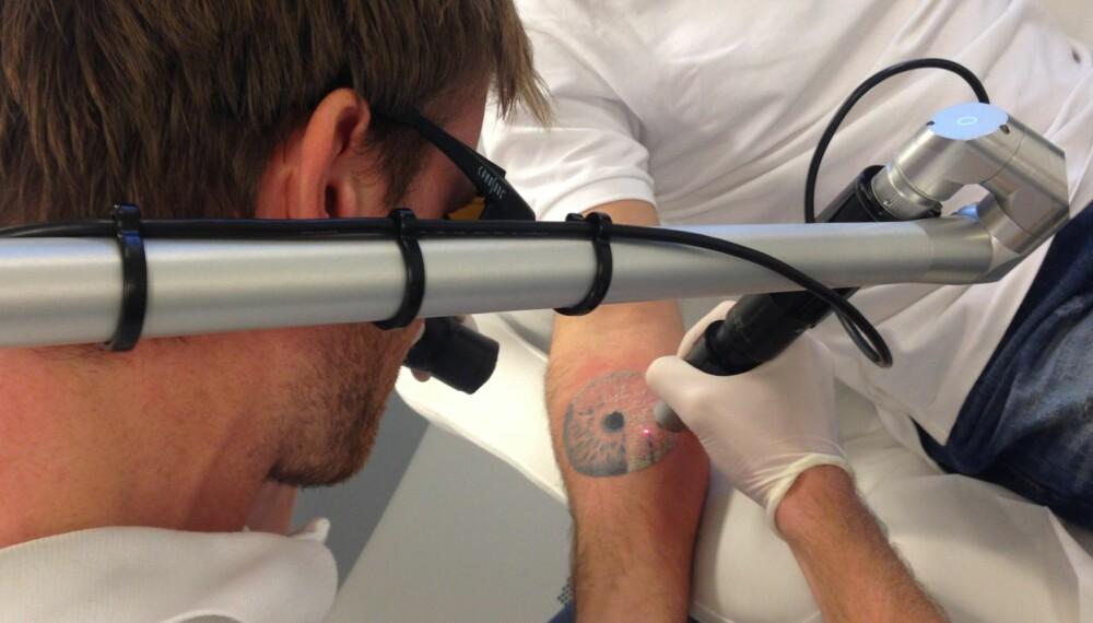 LASER: En kunde får fjernet en tatovering ved hjelp av laser. FOTO: Eraze Oslo.