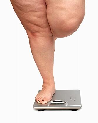 - Overvekt og fedme kan føre til at man ikke får eggløsning, sier overlege Eszter Vanky.