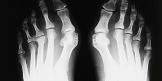 AU: Røntgen av føtter med Hallux valgus - en feilstilling av stortåen slik at den vries i retning lilletåen.Trange sko med høye hæler er en viktig årsak til tilstanden.