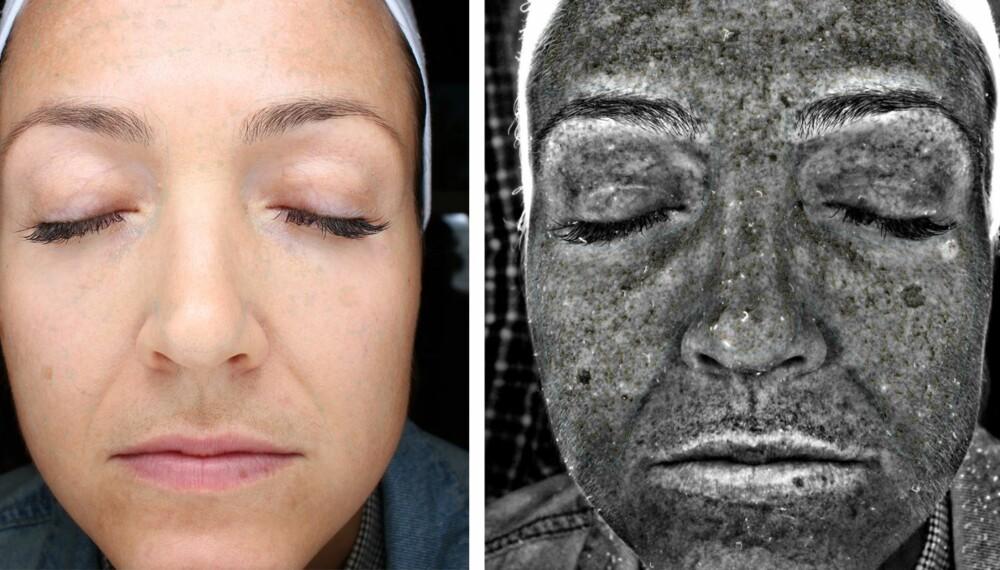 HUDANALYSE: Med skanningapparatet kalt VISIA, kan man analysere hvordan huden egentlig har det.
