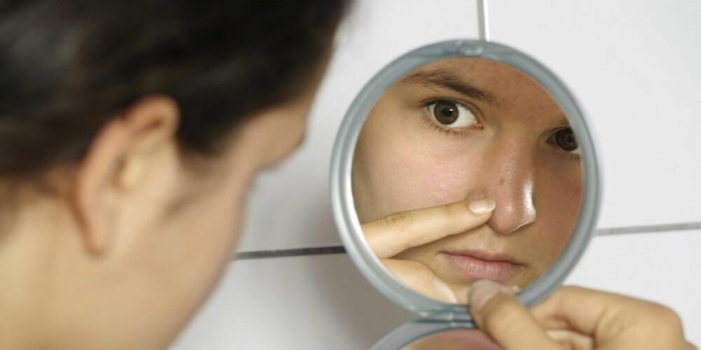 IKKE SIKKERT HUDEN ER FET: Selv om du får en kvise her og der, er det slett ikke sikkert at du har en fet hudtype.