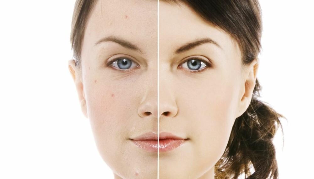 ULIKE HUDTYPER: Hudtyper kan deles inn på flere måter, men den vanligste inndelingen er tørr, normal, kombinert og fet hud.