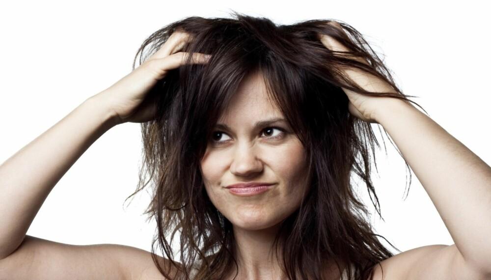 DÅRLIG HÅRDAG: Nesten alle opplever statisk hår på vinteren, men det finnes noen triks for å forhindre problemet.