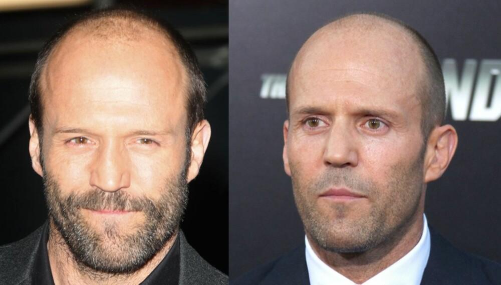UTROLIG: Kun ett og et halvt år skiller disse to bildene av den kjente action-skuespilleren, Jason Statham, men han er faktisk yngre på bildet til venstre! Nok et bevis på at snauklipt eller barbert hår er best når man begynner å miste det.