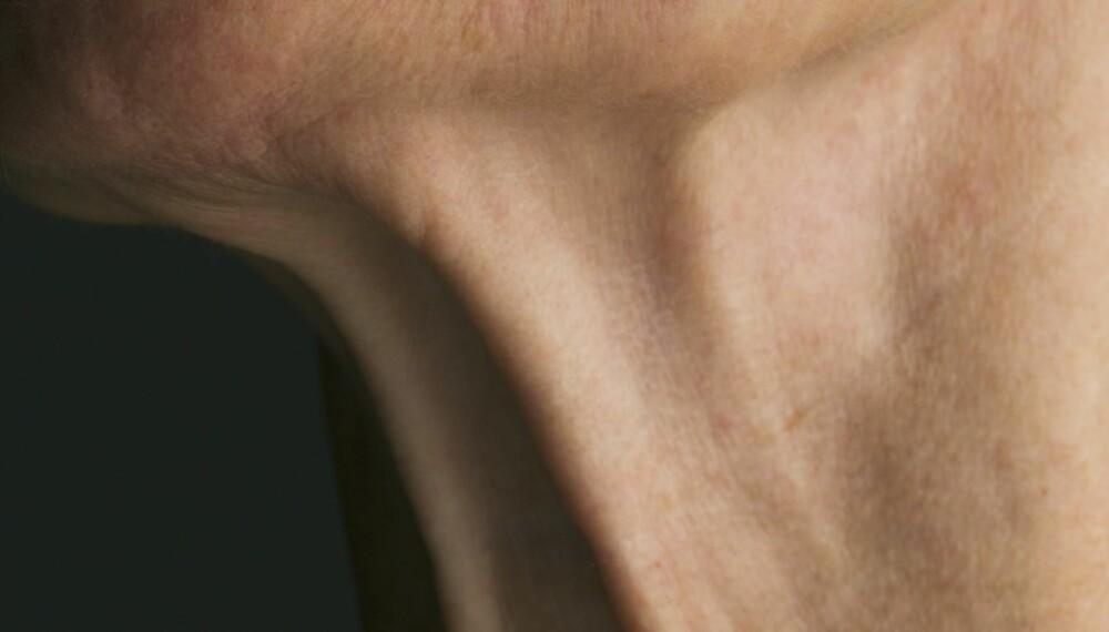 AVSLØRER DEG: Halsen er faktisk blant kroppsdelene som avslører alderen din først, og er videre lite du kan gjøre noe med. Den gledelige nyheten, derimot, er at moderne hudpleie er tilpasset alder i større grad enn før. Under har vi samlet gode metoder og produkter for å holde rynker, slapp hud og pigmentflekker unna - enten du er i 30-, 40- eller 50-årene. Her er den store anti-age-guiden.