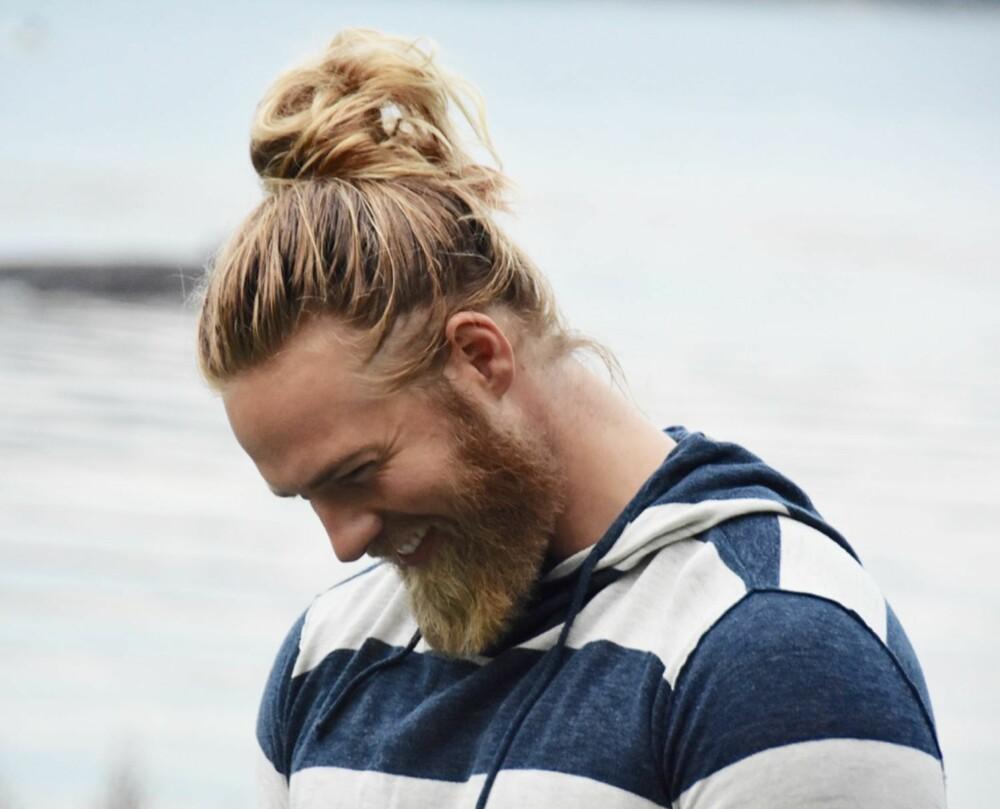 EN DEL AV IDENTITETEN: - Det å være over snittet hårete er en del av min identitet og jeg føler meg absolutt mest komfortabel slik, sier Lasse Løkken Matberg.