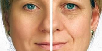 STOR FORSKJELL: Man kan se veldig annerledes ut med eller uten mørke ringer under øynene, men for å kunne forbedre de må man også forstå årsaken bedre.