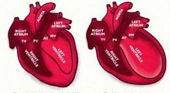 SKADET HJERTE: Hjertet til venstre er friskt og normalt, mens hjertet til høyre normalt hjerte har forstørret hjertekammer.