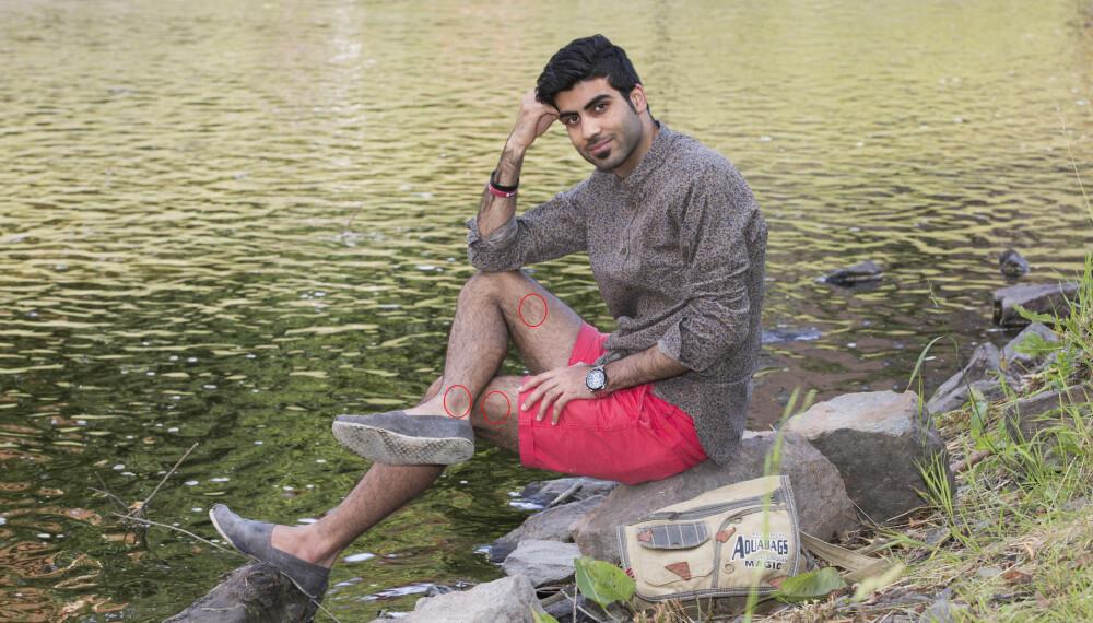 PREGET FOR LIVET: Hussein Kazemi kom fra Afghanistan og hadde bodd to år i Norge da han dro på sommerleir til Utøya i 2011. På dette bildet vises tre av de fire skuddsårene Breivik påførte ham. I tillegg ble han truffet nær albuen.