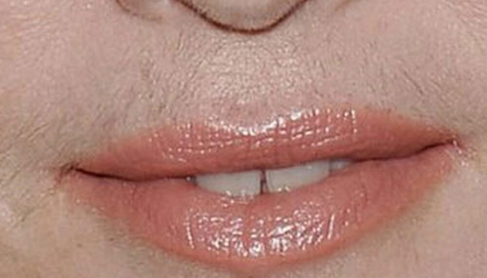 LITT DUN PÅ OVERLEPPEN: Madonna er en av dem som har vært plaget av uønsket hårvekst (i ansiktet).