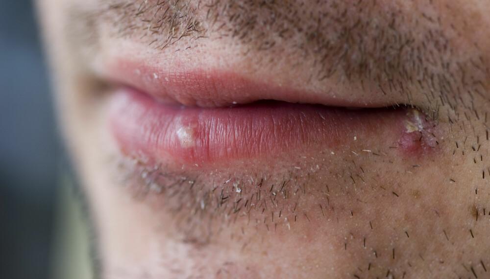 HUDPROBLEMER HOS MENN: Menn er mer disponible for ulike hudproblemer fordi de har skjegg. Dessverre. ILLUSTRASJONSFOTO: Colourbox