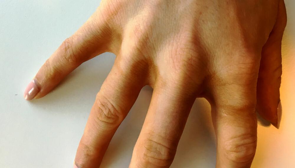 SELVBRUNINGSTABBE: Se der, selvbruningskremen har samlet seg opp mellom fingrene, - rett og slett grunnet en slurvete håndvask. FOTO: Jenny Mina Rødahl