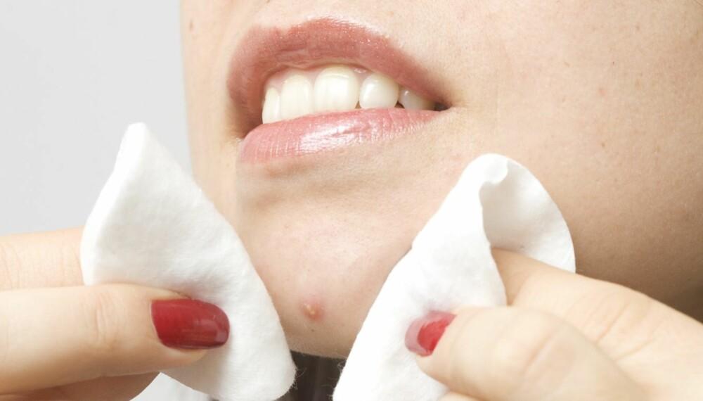 VIKTIG MED RIKTIG PRODUKT: Velger du feil produkter til huden din, kan du ende opp med å få både urenheter og kviser.