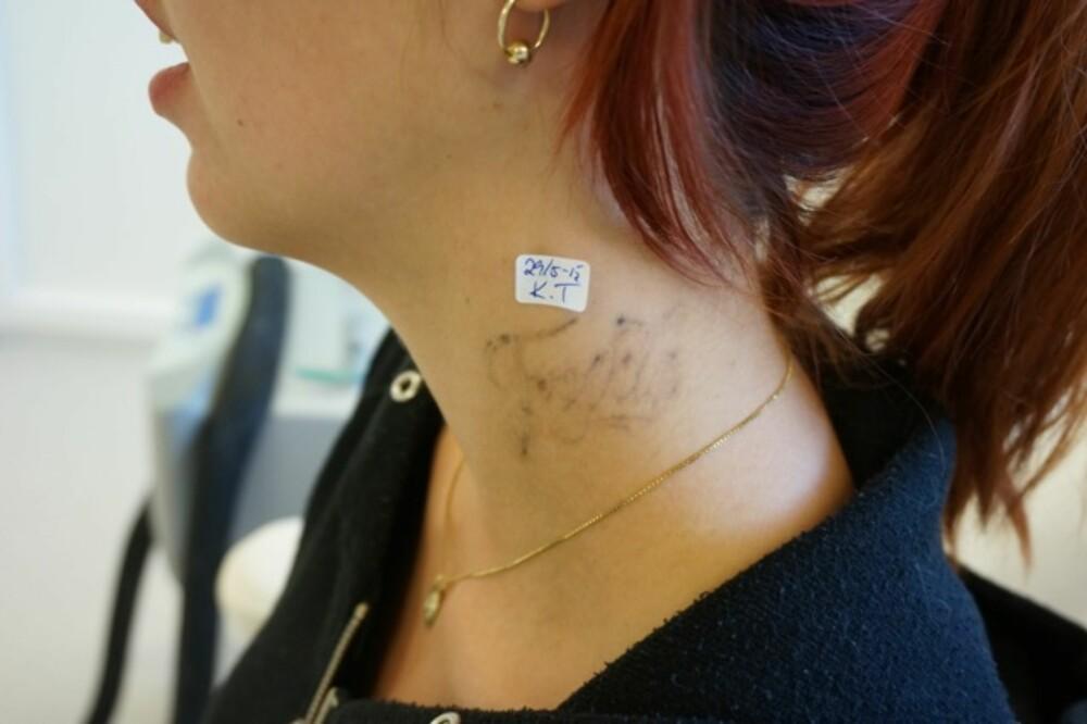 FJERNT MINNE: Mange angrer tatoveringen som ble tatt midt i den sterkeste forelskelses-rusen. Det kan koste deg dyrt i fremtiden, men det er i alle fall mulig å fjerne den betydelig.