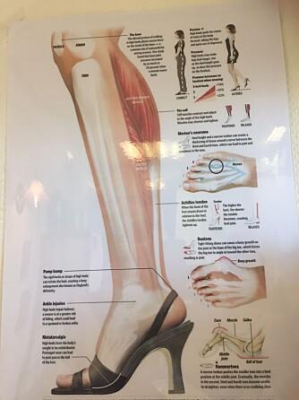 SKADER KROPPEN: Mye bruk av høye hæler kan føre til torner på tuppen av tærne. Ofte blir nervene da inneklemt, og det blir nervesmerter i forfoten. Blodkarene blir klemt sammen, og forfoten får ikke den blodforsyningen den skal ha, ifølge fotterapeut Else Olsen.