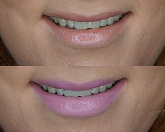 LYSE LEPPER: Her ser vi godt hvordan den nude leppestiften med en blå undertone (nederste bilde) gjør at tennene fremstår som langt hvitere enn den med en oransje undertone (øverste bilde).