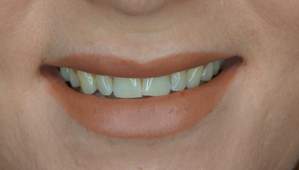 GULE TENNER: Det er ikke så rart at tennene ser gulere ut enn det de egentlig er når vi bruker brune leppestifter.