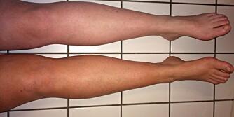 STOR FORSKJELL: Høyre benet fikk en jevn og naturlig brunfarge på bare fem minutter da vi testet de beste selvbruningstipsene. Venstre benet, derimot...