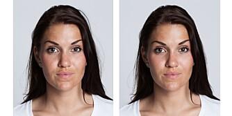 FØR OG ETTER: Til venstre: Slik så Annina ut før retusjeringen. Til høyre: Slik så hun ut etter. Dette ønsket hun å endre på: Nesa ble gjort smalere og rettere. Huden ble glattet og jevnet ut og «posene» under øynene fjernet. Overleppa ble fylt ut på høyre side. Kjeven og haka ble gjort smalere. Dette ønsket hun å endre på: Nesetippen ble gjort smalere. Huden ble glattet og jevnet ut. En skygge over munnen ble fjernet. En utstående hårtust ble fjernet.