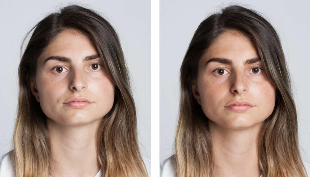 FØR OG ETTER: Til venstre: Slik så Donika ut før retusjeringen. Til høyre: Slik så hun ut etter. Dette ønsket hun å endre på: Det ene øyet og kjevebeinet ble flyttet ned for å stå mer i symmetri til andre halvdel av ansiktet. Tilførte fregner og øyenvipper. Øyenbrynene ble finformet. Huden fikk en mørkere tone og smilerynkene ble glattet ut. En utstående hårtust ble fjernet.