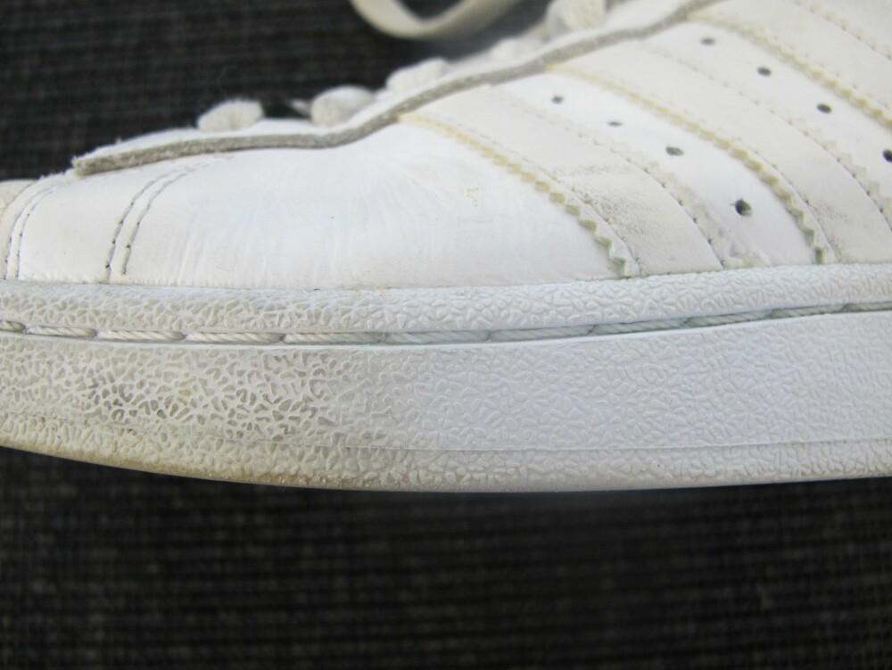 1fb1caec948 STOR FORSKJELL: Til venstre ser man hvordan sålen så ut før en runde med  tannbørste
