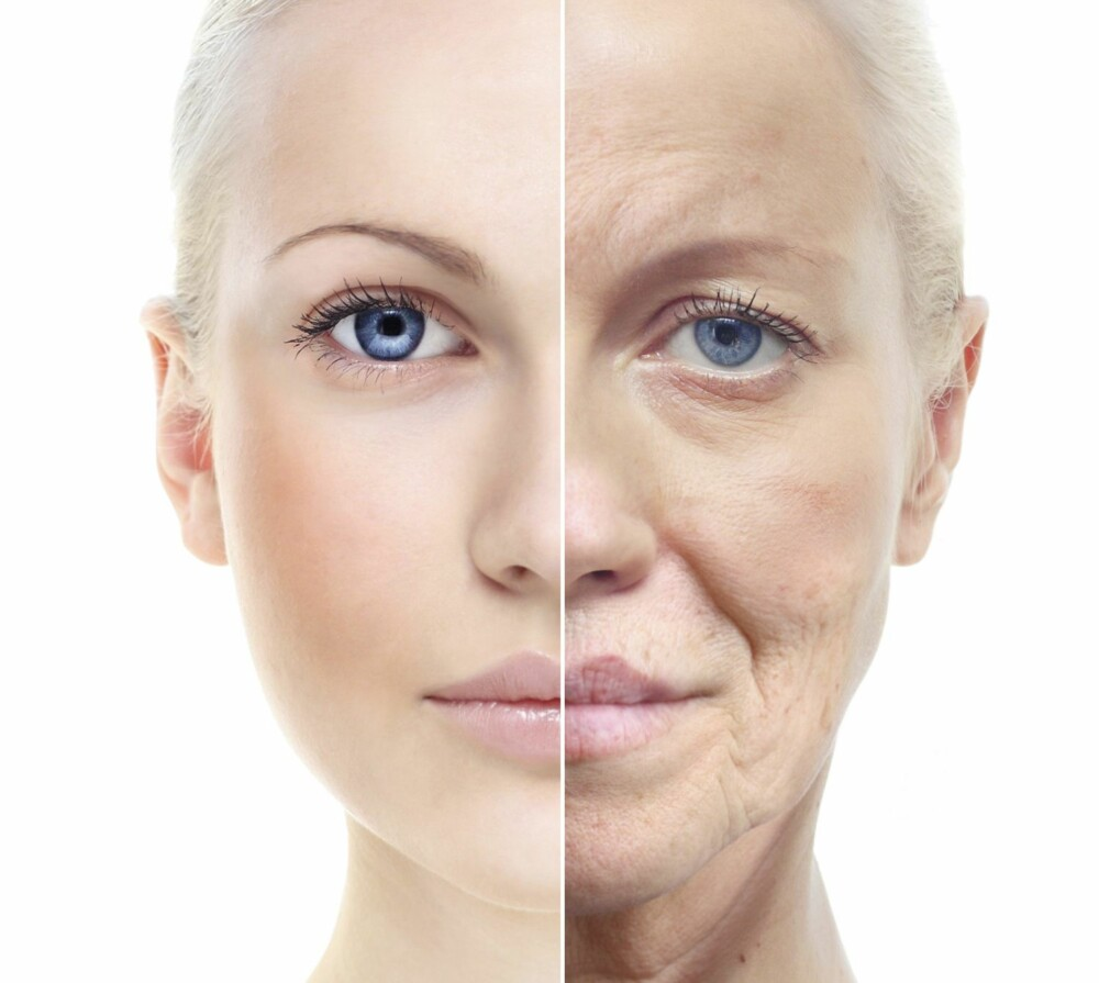 HUDEN: Ifølge Bukurie Krasniqi er det hovedsakelig tre ting som gjør huden gammel; gener, sol og røyking. Hun sier videre at det også synes på huden hvordan kroppen har det på innsiden. - Huden er vårt største organ, og eldes også raskere av et ubalansert kosthold, sier hun.