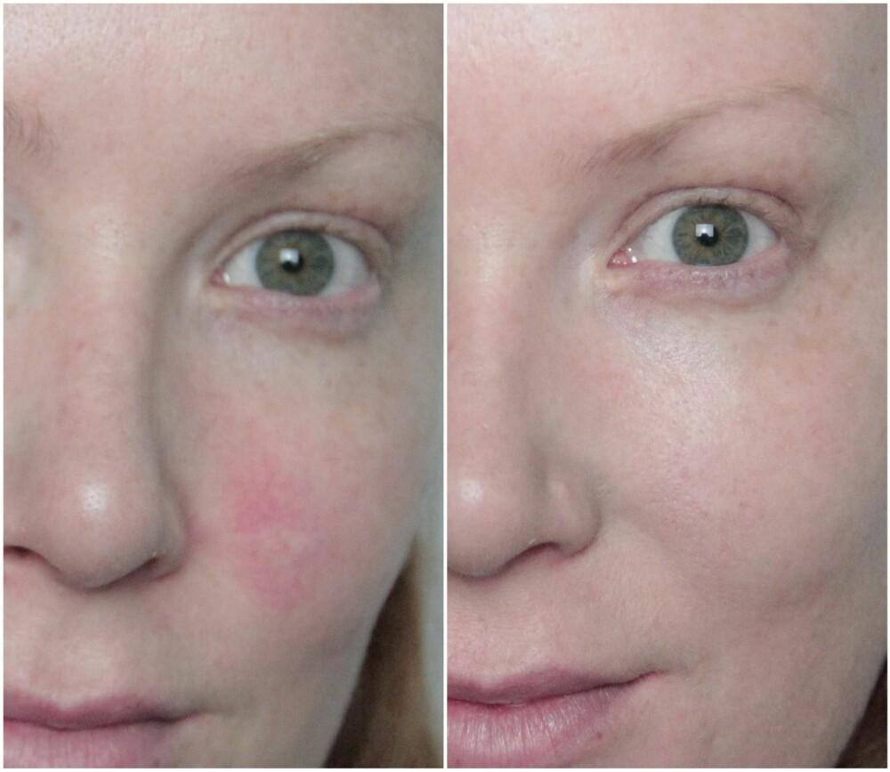 FØR OG ETTER: Med fargekorrigerende primer blir det røde og irriterte området på kinnet borte - uten at huden ser sminket ut.