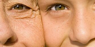 SENSITIV HUD: 70 prosent av oss har sensitiv hud.