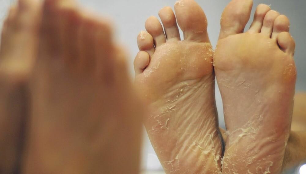 TEST AV BABY FOOT: Huden skrellet formelig av føttene under testen av fotproduktet Baby Foot.