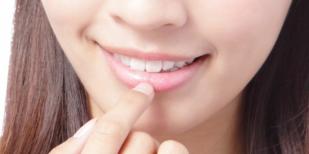 KYSSEKLARE LEPPER: Vær raus med leppomaden og ikke slikk deg på leppene.
