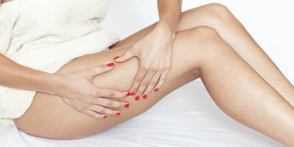 FETT: Cellulitter dannes av fett i det innerste hudlaget.