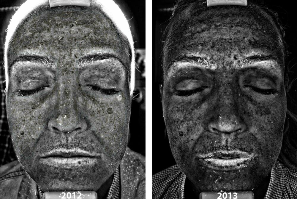 PIGMENTFLEKKER: Jada, her vises alt! På før-bildet er jeg synlig blekere enn på etter-bildet. Det kan være en feilkilde til resultatet som viste en forbedring fra usle 51 % til jublende høye 93 %. Men mest sannsynlig har det skjedd en forbedring likevel, spesielt på de underliggende pigmentflekkene.
