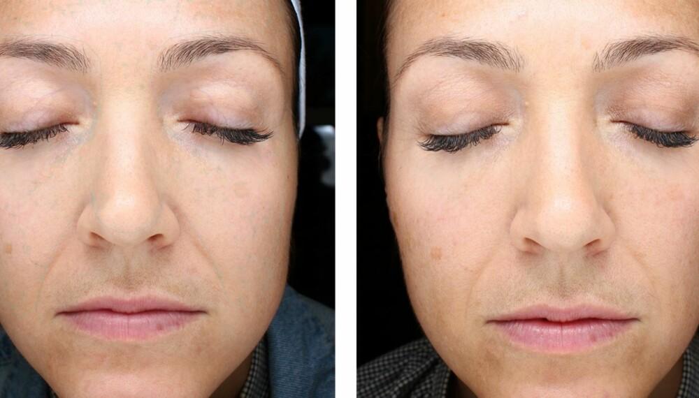 TEST AV POPULÆR HUDPLEIESERIE: Vi testet ZO Skin Health. Her er resultatet.