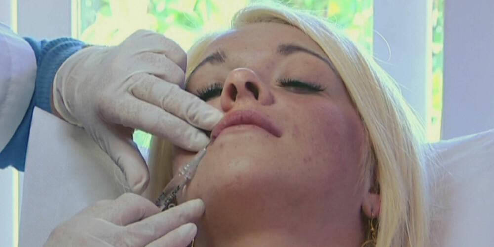 IKKE LENGER TABU: Nå skjuler vi ikke det lengre om vi har prøvd botox eller fillere.