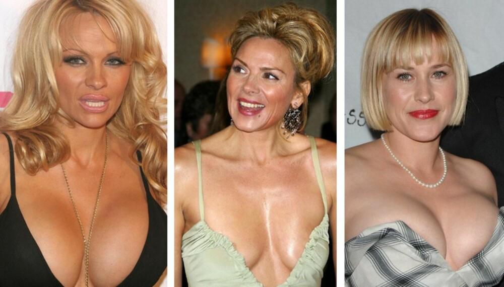 Pamela Anderson, Kim Catrall og Particia Arquette