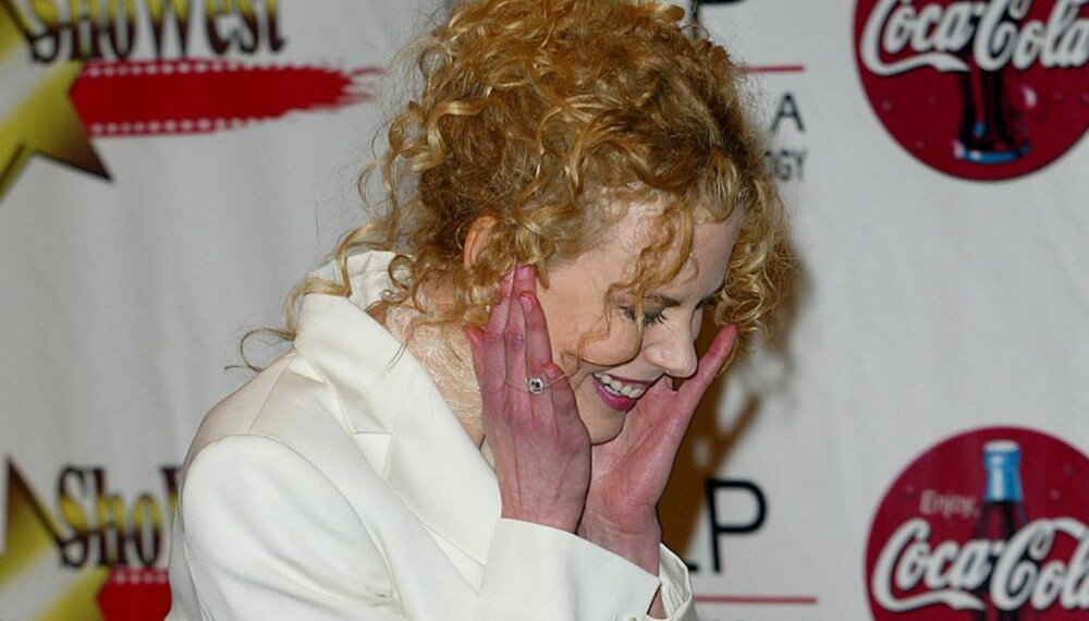 Nicole Kidmans rødsprengte hender