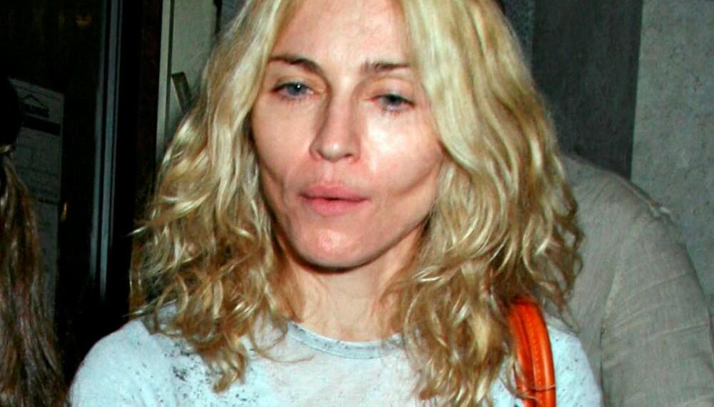 SLITER: Madonna sliter tydelig med helsen om dagen. Med slitne øyne og innsunkne kinn ser hun sykelig og gammel ut