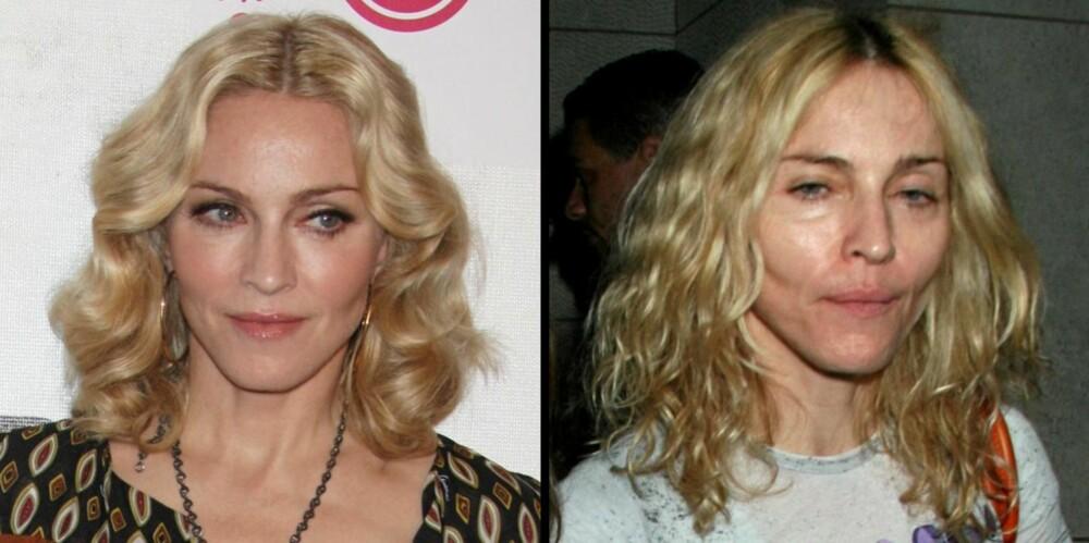 STOR FORSKJELL: Man kan tydelig se at Madonna har blitt tynnere i ansiktet. Bildet til venstre er tatt i april i år.