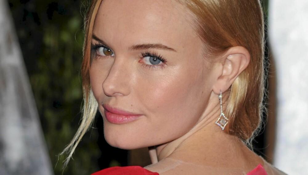 ROSER I KINNENE: Få friske kinn som Kate Bosworth ved å bruke disse tipsene.