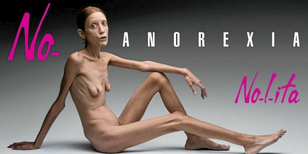 BANNLYSTE REKLAMER: Denne anorektiske modellen veier bare 30 kilo, og skapte voldsom oppstandelse under moteuka i Milano i 2007.