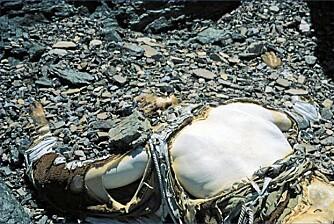 George Mallory ble funnet nedenfor nordøstryggen i 1999. Slik hadde kroppen ligget i 75 år.