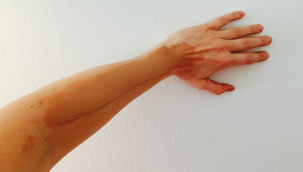 SELVBRUNING: Det finnes flere riktige regler for hvordan du skal påføre selvbruningen på, og veldig mange tabber du må passe på!